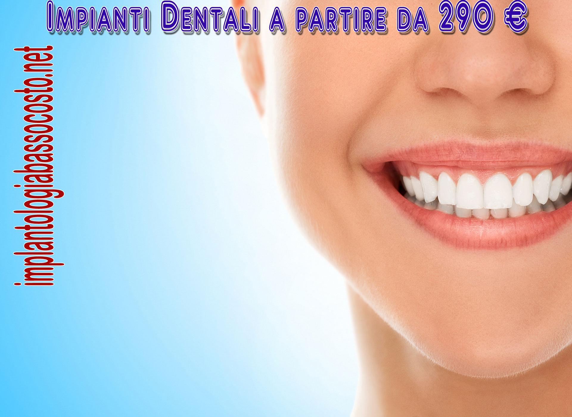 Impianti dentali con sconti fino al 70 %